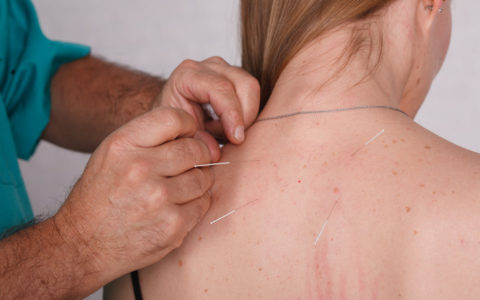 Refleksoterapia
